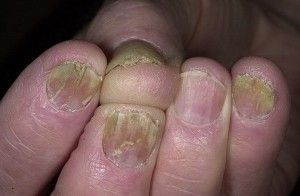 Причини появи хвороб нігтів на руках, симптоми і способи лікування