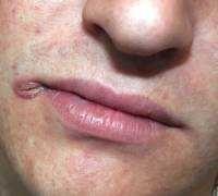 Причини появи тріщин в куточках губ, лікування заїду в кутах рота