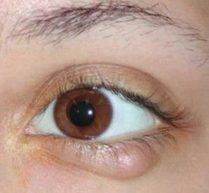 Причини появи жировика на оці і способи видалення