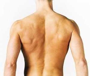 Причини сильного болю в спині між лопатками