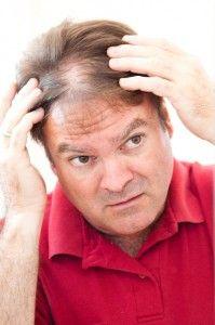 випадання волосся у чоловіків