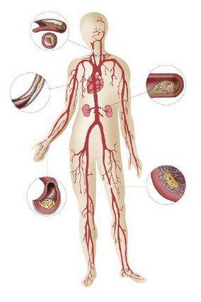 Принципи лікування атеросклерозу
