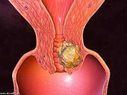 Ознаки раку шийки матки