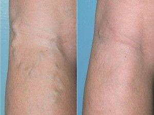 Процедура склерозування вен нижніх кінцівок