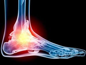 Різновиди переломів стопи