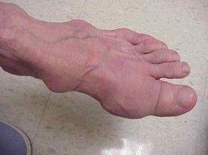 Ревматоїдний артрит ніг: як визначити і лікувати підступна недуга