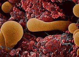 Ризик розвитку ревматоїдного артриту підвищує вагітність