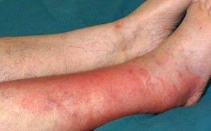 Бешиха ноги - симптоми, лікування, профілактика