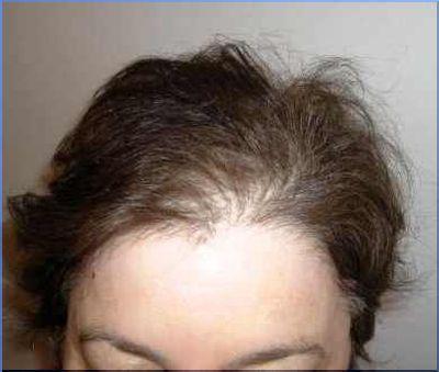 З чим пов`язано випадання волосся у жінок