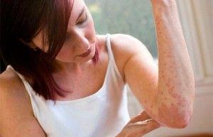 Найефективніші способи лікування кропив`янки в домашніх умовах