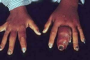 Симптоми і лікування подагри