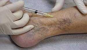Тромбофлебіт: симптоми, лікування