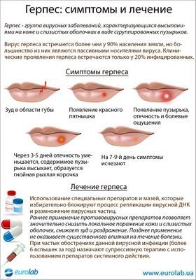 Симптоми і лікування герпесу