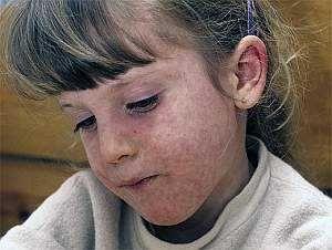 Симптоми кору у дітей, лікування і ускладнення