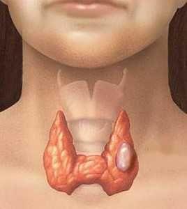 Симптоми раку щитовидної залози. Методи лікування, прогноз виживання