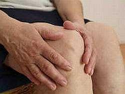 Симптоми ревматоїдного артриту, методи лікування
