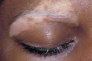Симптоми вітіліго, методи діагностики і наслідки захворювання