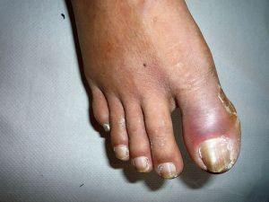 Хворий палець ноги при цукровому діабеті