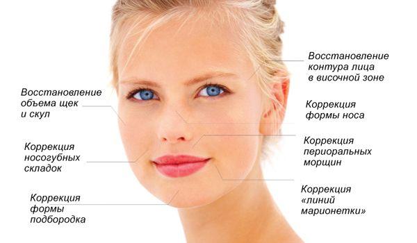 Способи корекції носо-губних складок