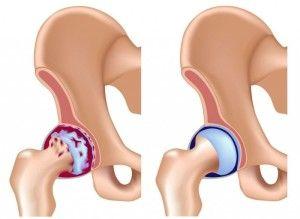 Тазостегновий суглоб: анатомія, можливі проблеми