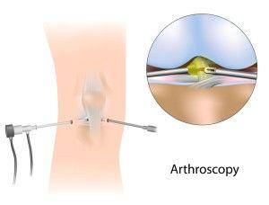 Видалення меніска колінного суглоба все за і проти