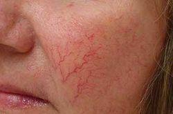 Видалення судин на обличчі методом електрокоагуляції