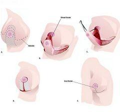 Зменшення грудей