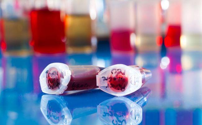 У чому цінність стовбурових клітин з пуповинної крові