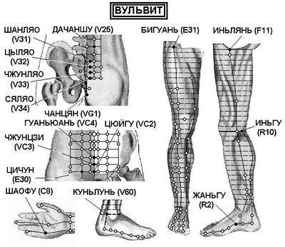 Вагинит (кольпіт), вульвовагініт, вульвіт