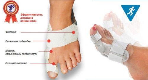 Застосовуємо ValuFix для лікування кісточки на нозі