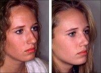 Можливі ускладнення після септопластики носа