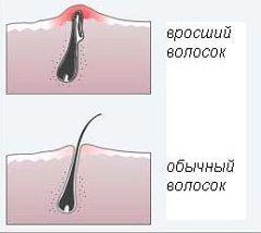 Врослі волосся після епіляції