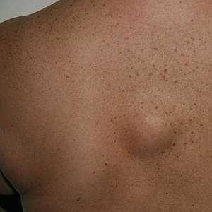 Жировик на тілі, під шкірою: симптоми, причини, видалення